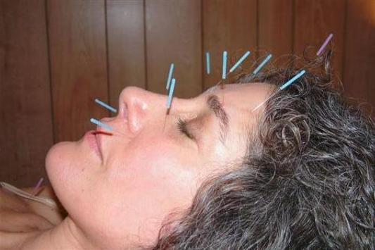 Accupuncture with Android apk screenshot