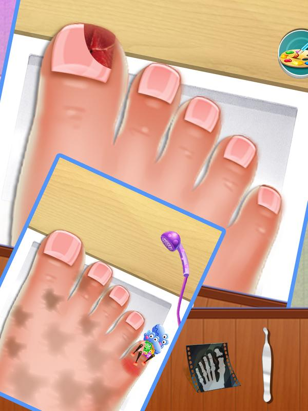 download game nail doctor