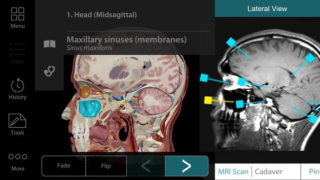Human Anatomy Atlas 17 (Org.) screenshot 1