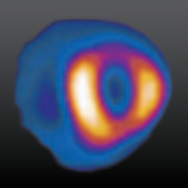 AUC for Cardiac RNI icon