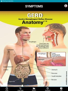 Signs & Symptoms GERD apk screenshot