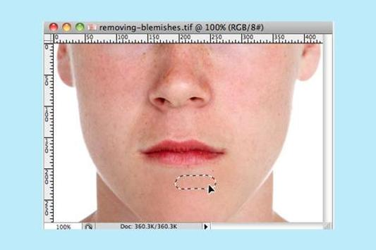 Face Blemishes Removal apk screenshot