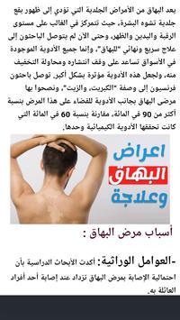 علاج سريع للبهاق طبيعيا poster