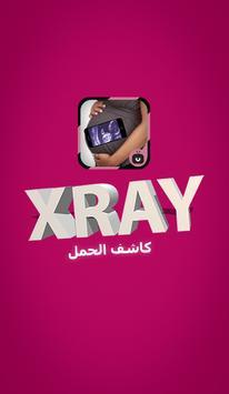 سكانير العضام حقيقي -simulated poster