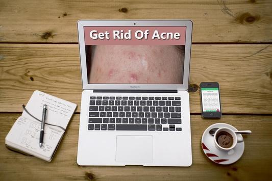 How To Get Rid of Acne Fast screenshot 3