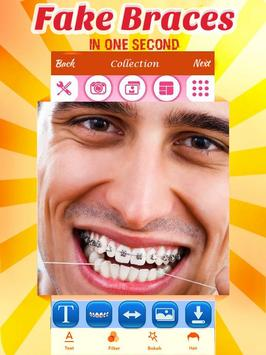 Fake Braces apk screenshot