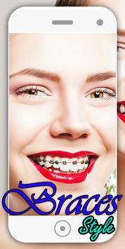braces camera & braces Teeth photo editor screenshot 2