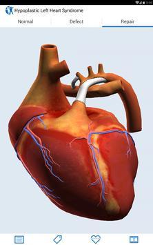 Heartpedia apk screenshot