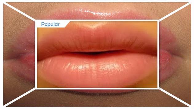 Natural Lips Instant Treatment screenshot 3