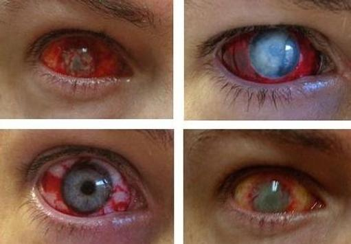 contact lens gallery screenshot 8
