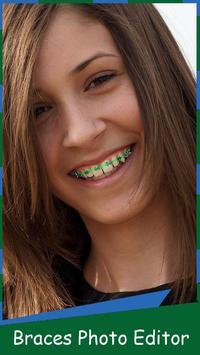 Braces Free – Photo Editor poster