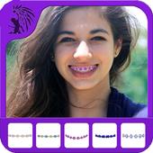 Real Braces - Beauty Photo icon