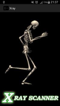 Bone X-ray prank apk screenshot