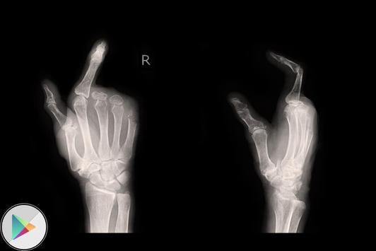 X-Ray Scanner Prank screenshot 2