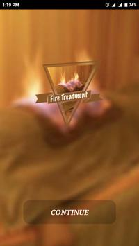 Fire Treatment - आग उपचार poster