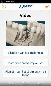 DENTSPLY Implants screenshot 5