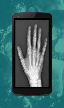 Body Scanner Prank screenshot 3