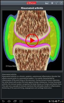 Atlas of Rheumatoid Arthritis screenshot 7