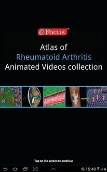 Atlas of Rheumatoid Arthritis screenshot 6