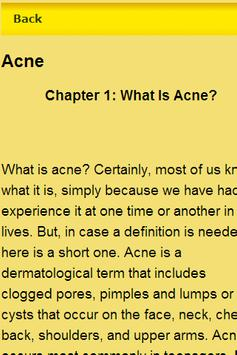 Remove Acne Tips apk screenshot