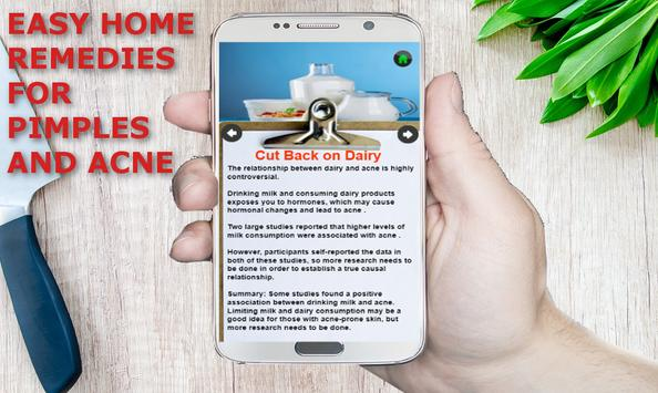 Pimple and Acne Removal Remedies : Free screenshot 1