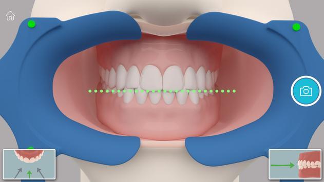 Dental Monitoring apk screenshot