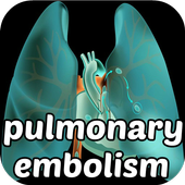 Pulmonary Embolism Symptoms icon