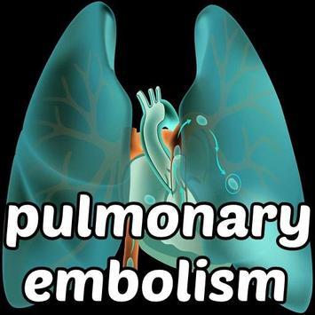 Pulmonary Embolism Symptoms poster