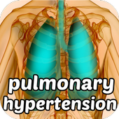 Pulmonary Hypertension Symptom icon