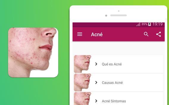 Acné síntomas tratamiento y prevención screenshot 3