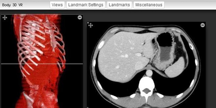 Imaging Anatomy - CT MRI XR US apk screenshot