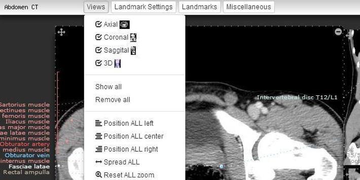Imaging Anatomy - CT MRI XR US poster