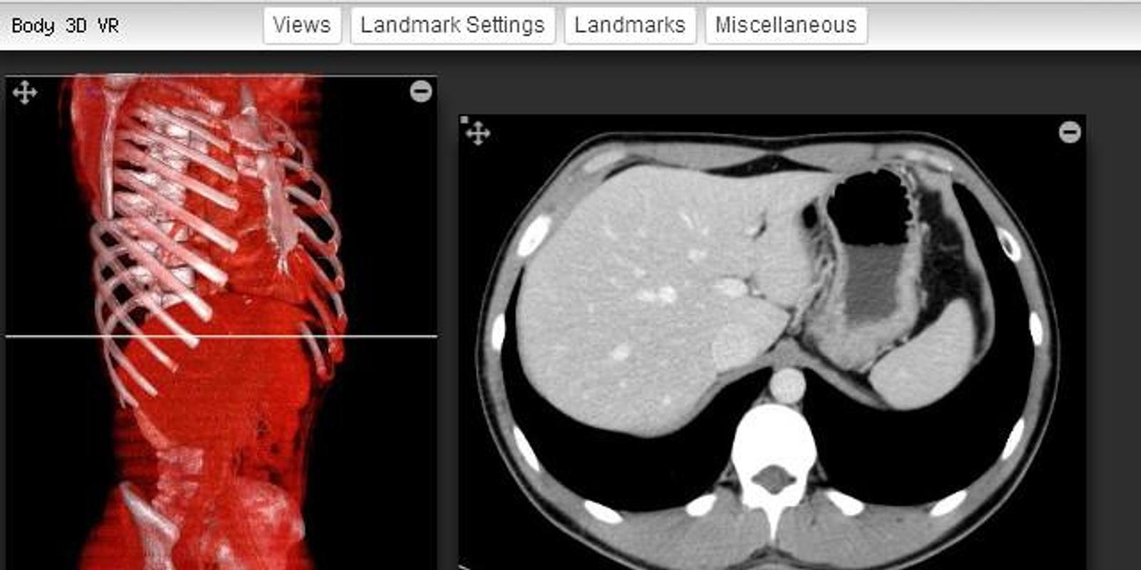 Imaging Anatomy - CT MRI XR US Descarga APK - Gratis Herramientas ...