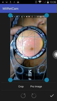 MII Ret Cam - Patient Profile screenshot 3
