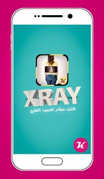 كاشف عظام العمود الفقري  prank poster