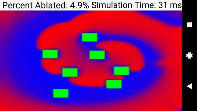 Biophysical Cardiac Ablation Simulator screenshot 5