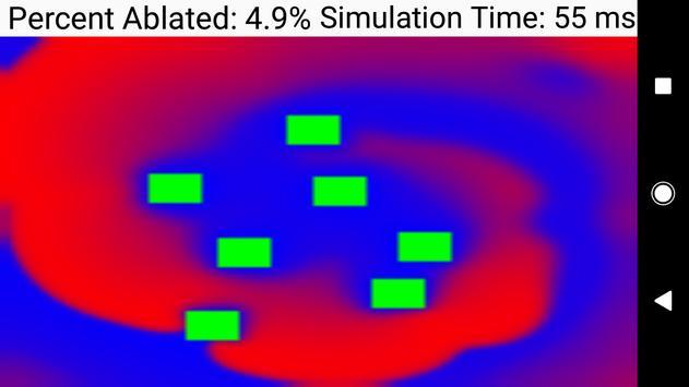 Biophysical Cardiac Ablation Simulator poster