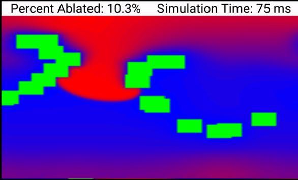 Biophysical Cardiac Ablation Simulator screenshot 2