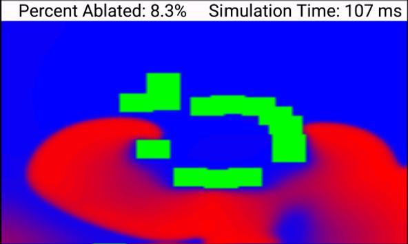 Biophysical Cardiac Ablation Simulator screenshot 3