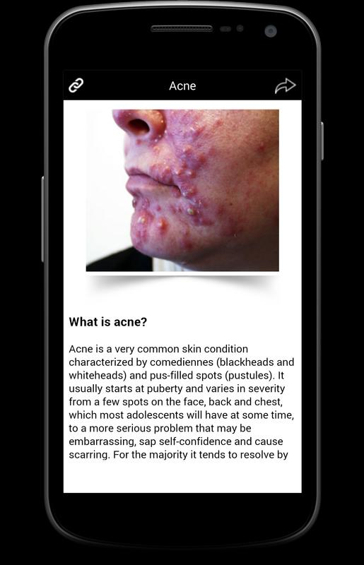 acne a very common skin disease Acne is a skin disease involving the oil glands at the base of hair follicles it affects 3 in every 4 people aged 11 to 30 years acne is a common skin problem.