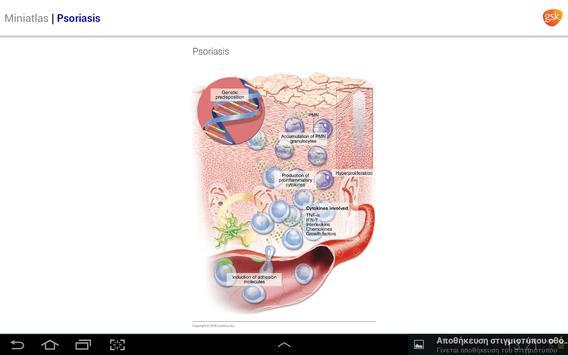 Dermatology Miniatlas screenshot 17