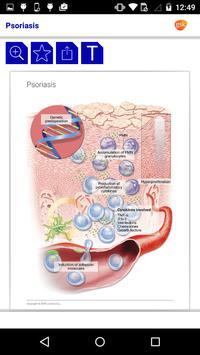 Dermatology Miniatlas screenshot 4