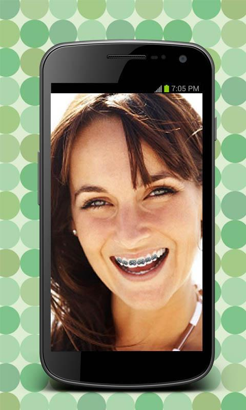 how to wear fake braces