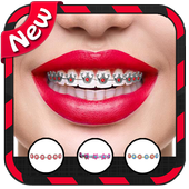 Braces For Teeth (Real Look) icon