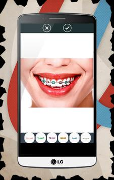 Braces For Teeth (Real Look) apk screenshot