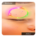 Face Blemishes Cleaner & Face Pimple Removal
