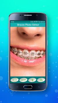 BRACES PHOTO EDITOR apk screenshot