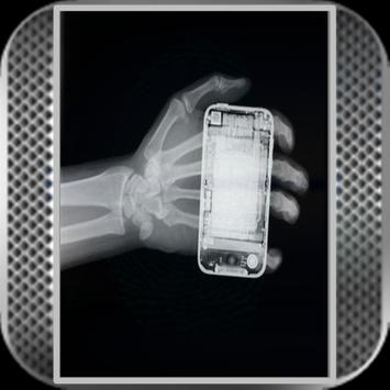 Awesome X ray prank poster