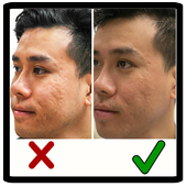 Acne Scar Removal Home Remedies icon