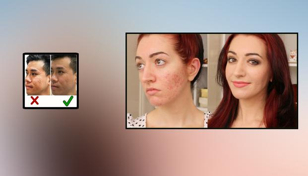 Acne Scar Removal Home Remedies poster